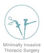 Minimally Invasive Thoracic Surgery - Michael Harden Cardiothoracic Surgeon