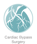 Cardiac Bypass Surgery - Michael Harden Cardiothoracic Surgeon